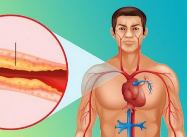 средство от холестерина в сосудах
