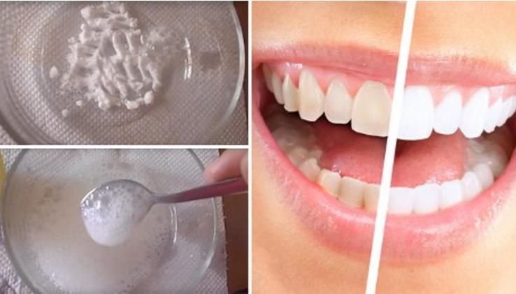 сколько стоит отбеливание зубов в омске