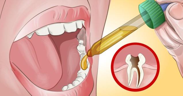 Как обезболить зуб в домашних условиях если сильно болит