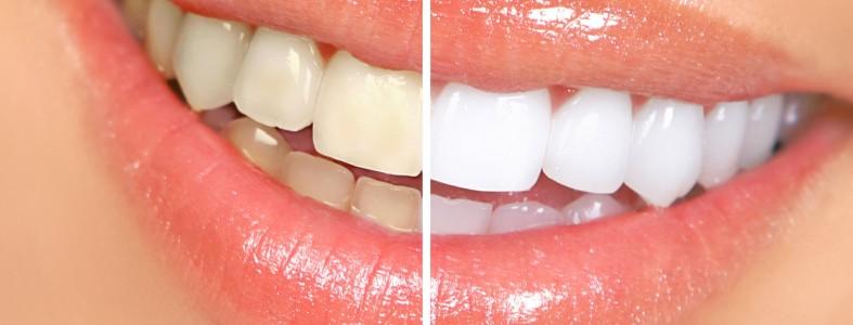 Как удалить зубной налет за 5 минут естественным способом без визита к стоматологу! | Остроумно