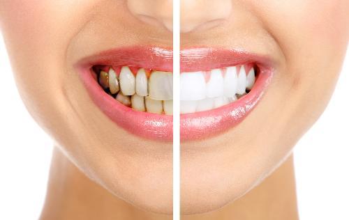 zubnoj-nalet-2