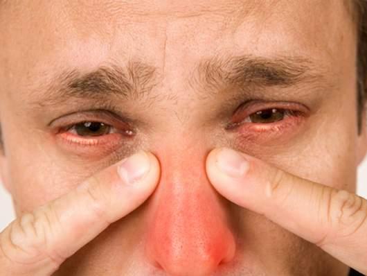gajmorit-simptomi-kopiya