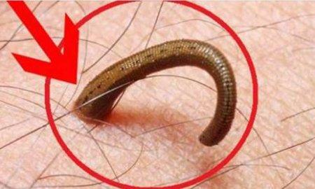 худеть от паразитов