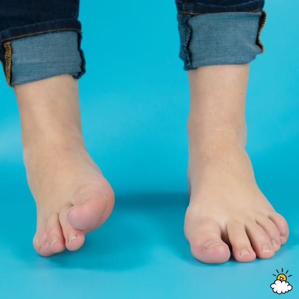 Изображение - Сустав ноги 10 3-20
