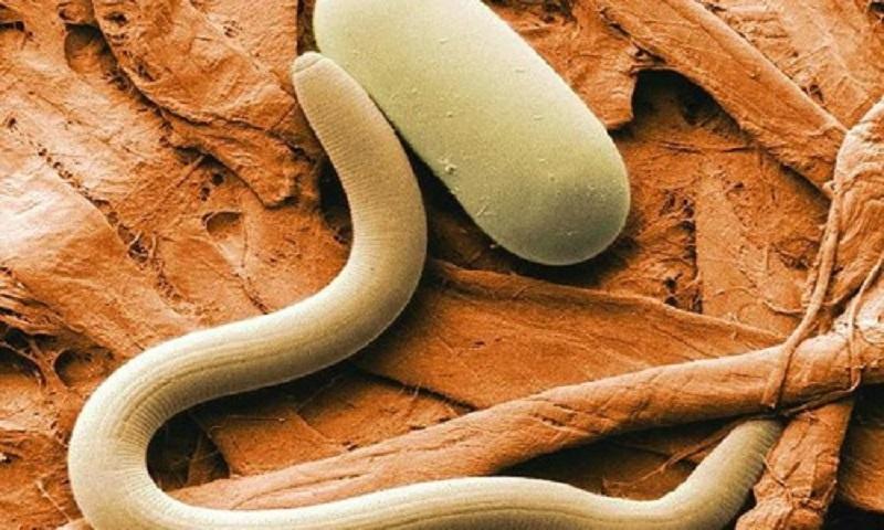 средство для вывода паразитов из организма человека