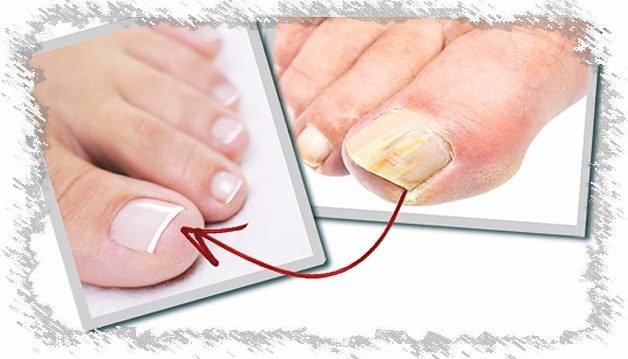 Как вылечить грибок ногтей ультрафиолетовая