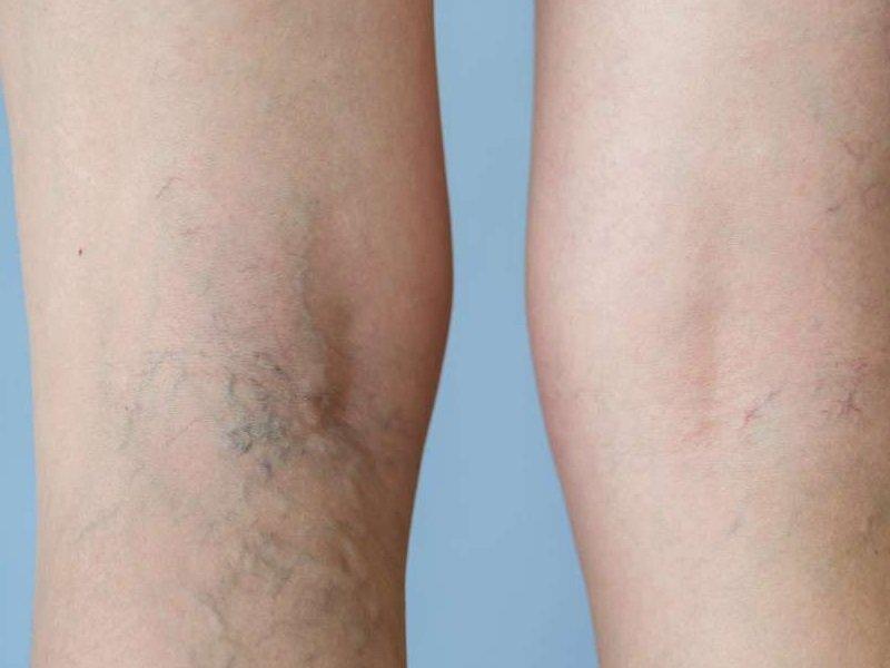 Народные методы лечение сыпи на теле