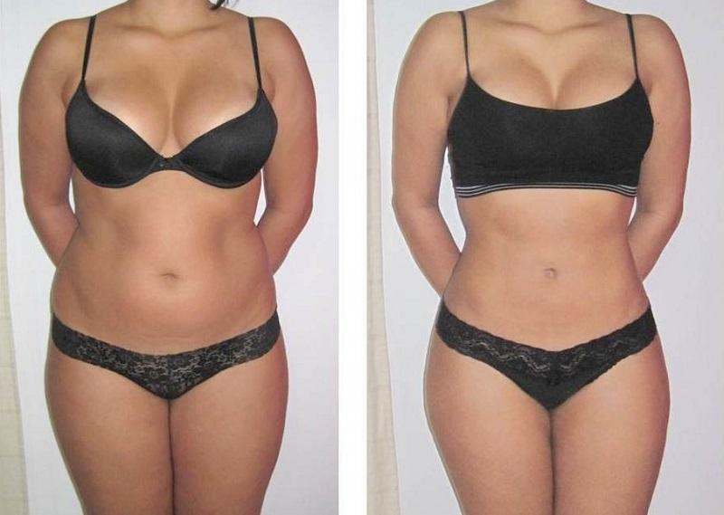 как похудеть с помощью гречки за неделю