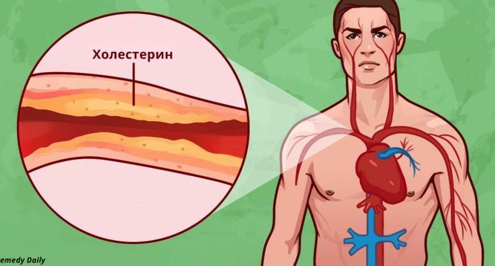высокий холестерин в молодом возрасте причины