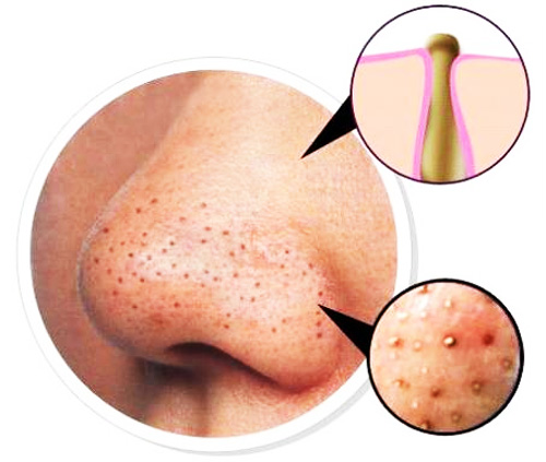 health-blackheads-1