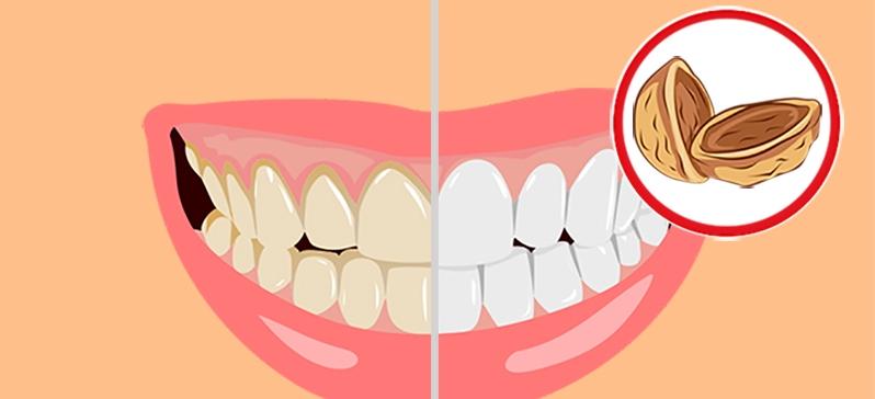 rsas-auds-dostupnoe-domashnee-sredstvo-ot-zubnogo-naleta-alternativa-chistke-v-klinike_eccbc87e4b5ce2fe28308fd9f2a7baf3