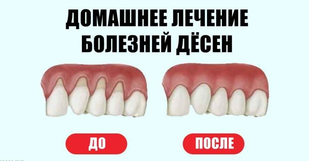 как называется запах изо рта от сигарет