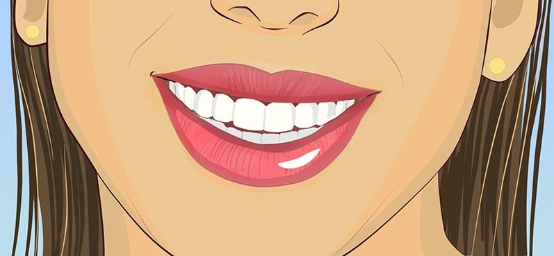 otbelivanie-zubov_6b360ee5c4a1fedf99f18d8c6cae5621
