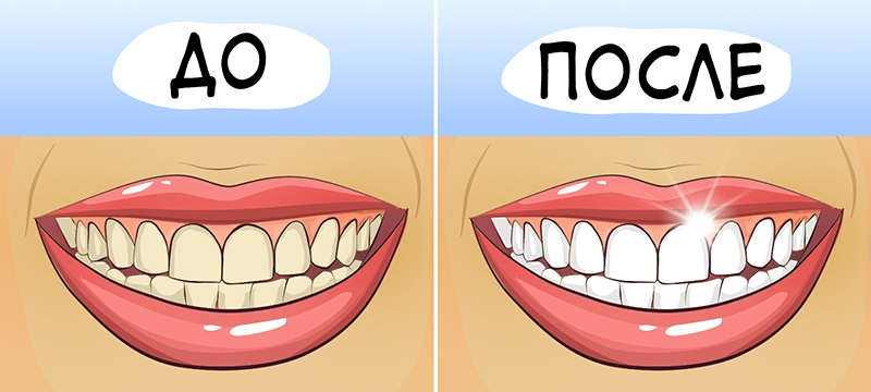 otbelivanie-zubov_906fe7eacbcd997ef0d51240e51c63ef