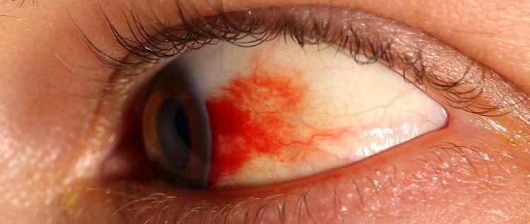 retinopatiya-diabet-simptomy