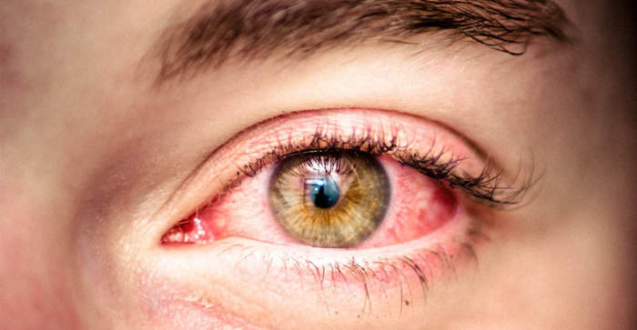 simptomi-allergii-na-glazah