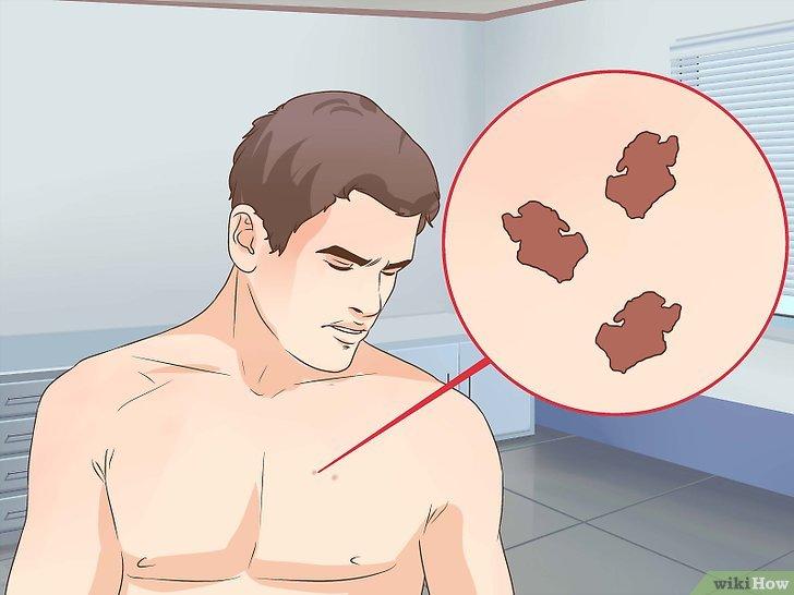 v4-728px-Treat-Skin-Cancer-Step-1