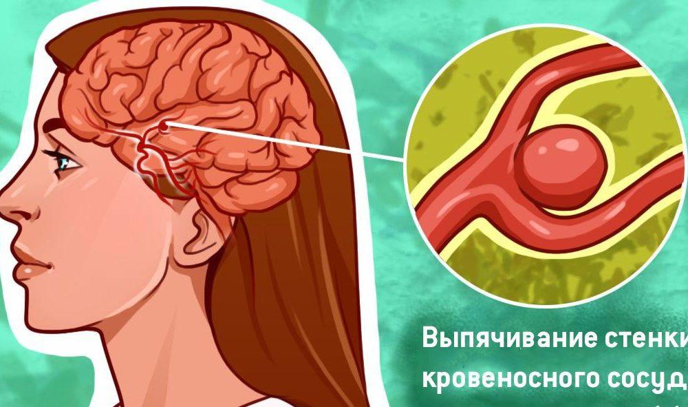 Вот буквально все, что нужно знать об аневризме головного мозга - e86854be7a2