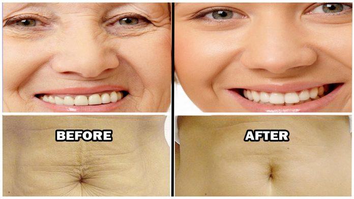 как удалить жир на лице