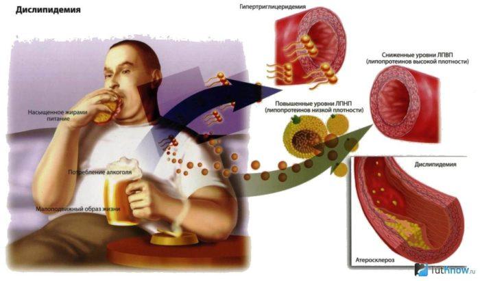 норма холестерина в крови у мужчин
