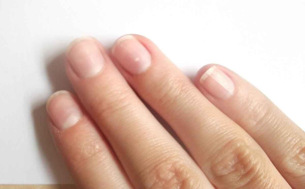 Белые пятна на ногтях: почему появляются, что означает 41