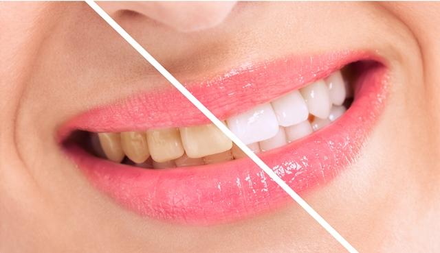 Экономично и просто: 6 способов отбеливать зубы дома
