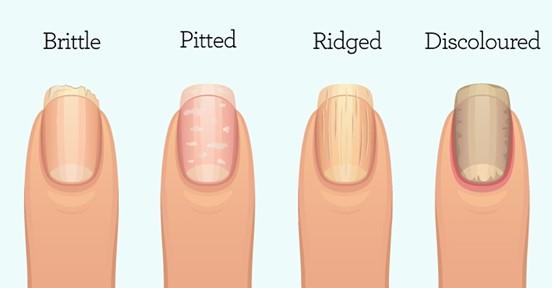 Вот что о вашем здоровье могут рассказать ногти