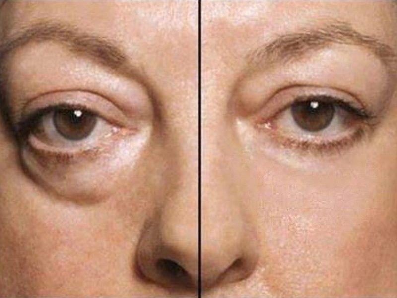 Инъекции против синяков под глазами эксперимент