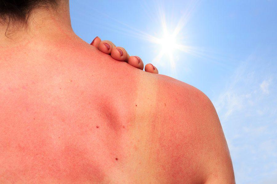 Что делать, если вы обгорели на солнце