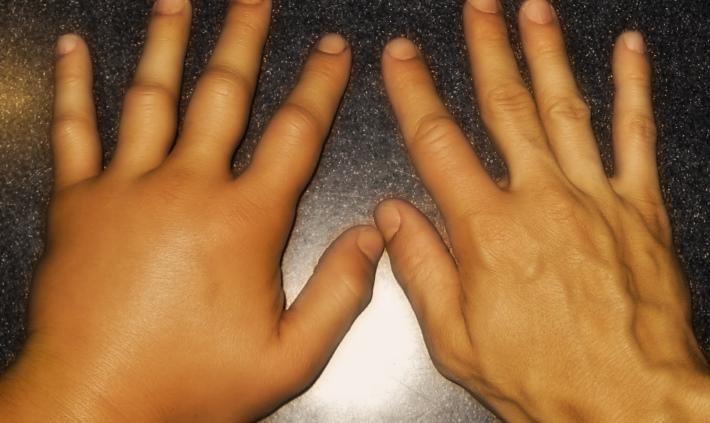 У вас постоянно появляются отеки на руках: Вот о чем это может говорить