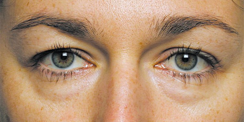 «Вы плохо спали и…»: Топ основных причин появления мешков под глазами и как с этим справится