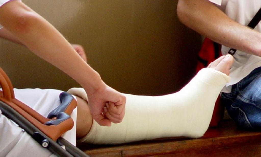 Как я сломала ногу, а хирург попросил поверить на слово, что перелома нет